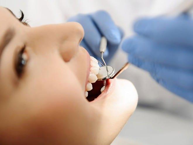 Nếu kẹo cao su có chứa đường, nó có tác động tiêu cực đến sức khỏe răng miệng. Vi khuẩn sống trong khoang miệng tiêu hóa đường có trong kẹo, dẫn đến tích tụ mảng bám trên răng /// Ảnh minh họa: Shutterstock