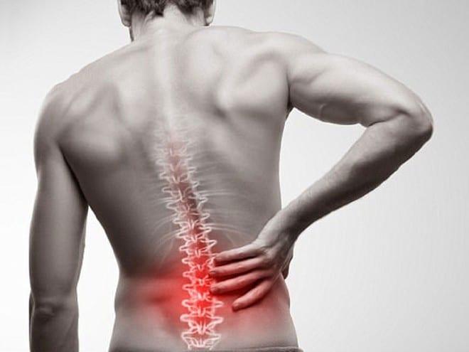 Bạn còn trẻ và thường xuyên gặp phải tình trạng đau lưng, thì có thể là do viêm cột sống dính khớp /// Ảnh minh họa: Shutterstock
