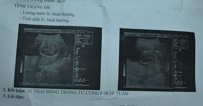 """Ngành y tế TP.HCM từng phát hiện một số trường hợp phá thai """"chui"""" khi tuổi thai đã lớn /// Ảnh minh họa: Duy Tính"""