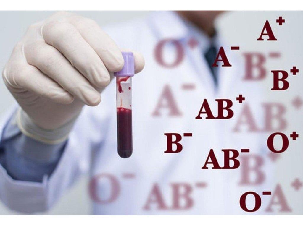 Người thuộc nhóm máu A, B hoặc AB có thể tăng nguy cơ đột quỵ sớm /// SHUTTERSTOCK