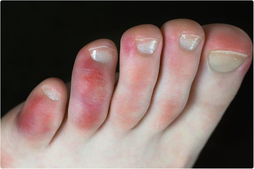 Covid-19 cũng tác động đến da bàn chân /// Ảnh: Shutterstock