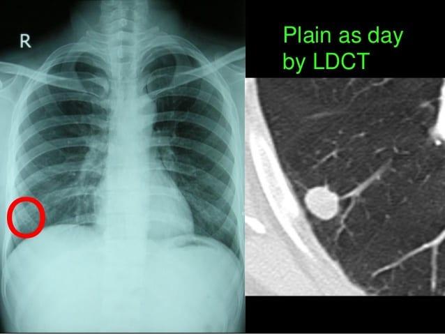 Nếu nhận thấy bất kỳ dấu hiệu nào sau đây, hãy đi khám ung thư phổi - ảnh 1