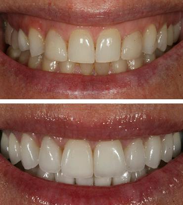 Patient 1's smile improvement