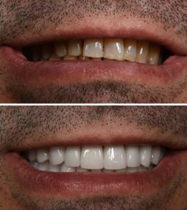 Patient 2's smile improvement