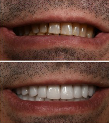 Patient 2's smile improvement