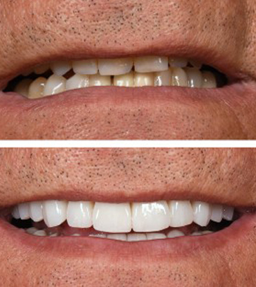 Patient 3's smile improvement