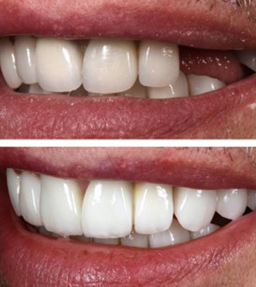 Patient 4's smile improvement