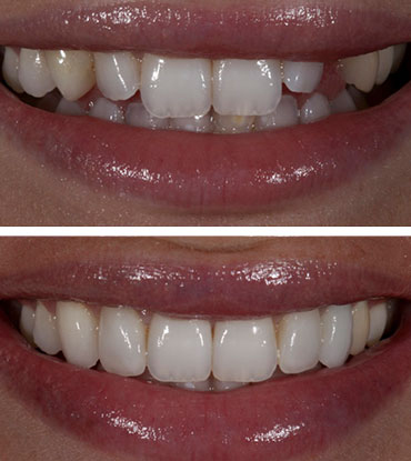 Patient 5's smile improvement