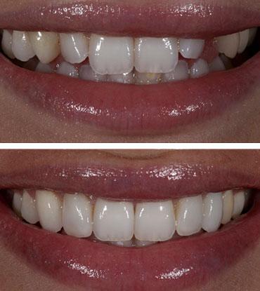 Patient 5's smile improvement