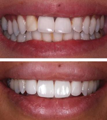 Patient 6's smile improvement