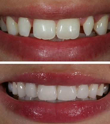 Patient 7's smile improvement