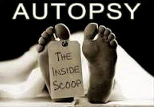 Autopsy Facts All Mystery Writers Are Dying To Know