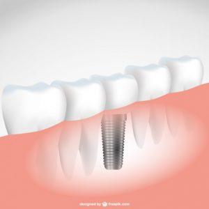 Cosmetic Dentistry A Savior