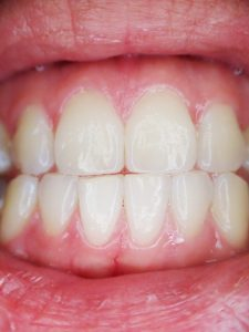 Periodontal Disease: Causes, Symptoms and Treatment