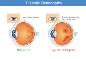 What are the symptoms of diabetic retinopathy?