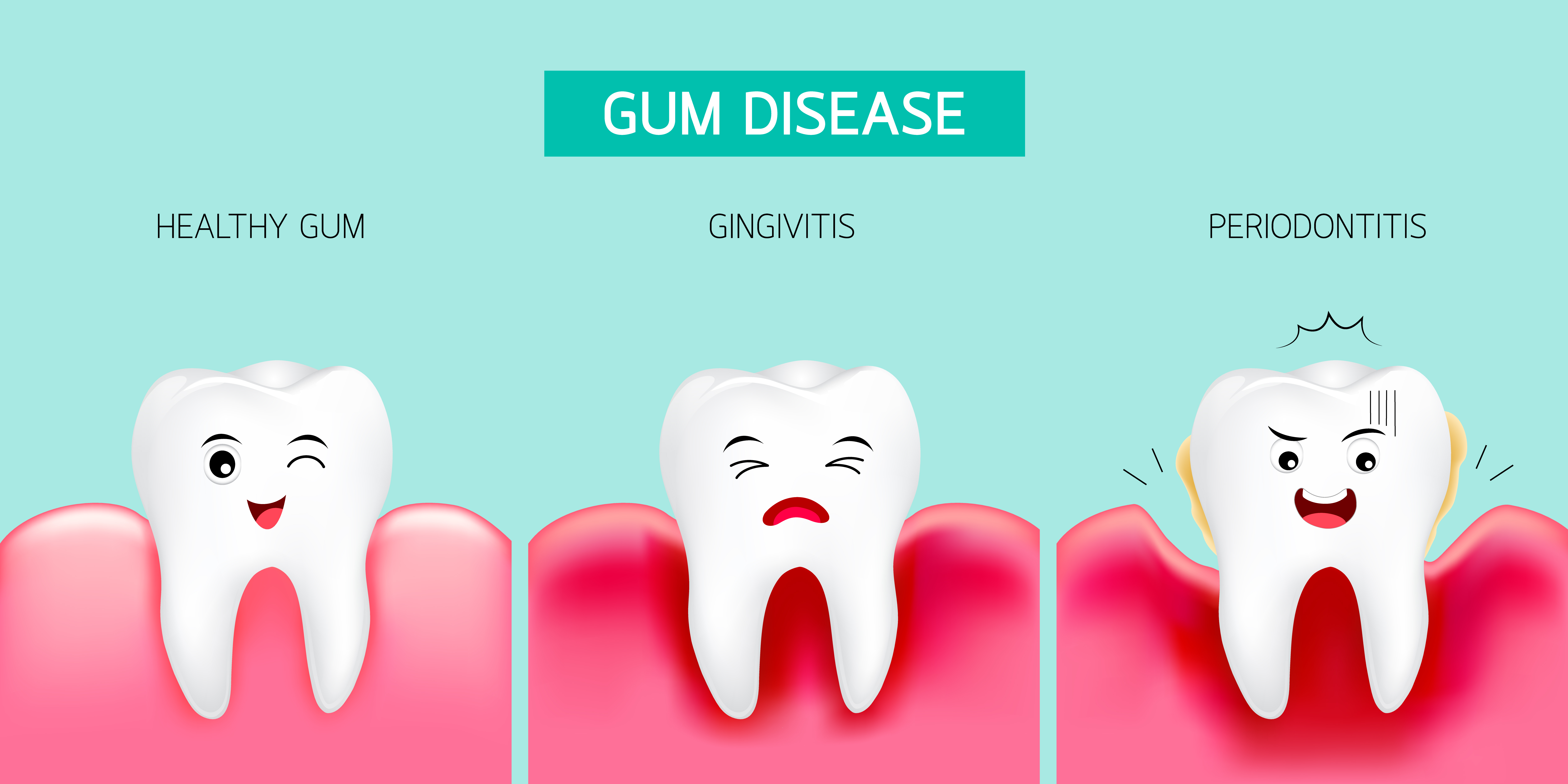 Periodontitis Causes Symptoms Prevention And Treatments