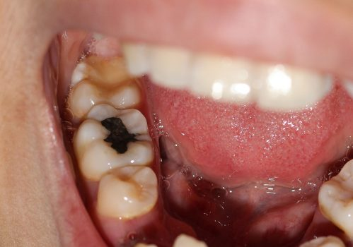 Decay Of Tooth How Can You Prevent It From Occurring