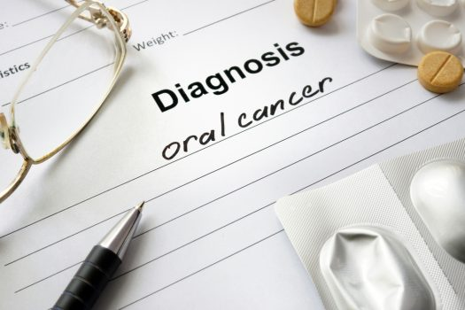 Oral Cancer Causes Symptoms Prevention And Treatments