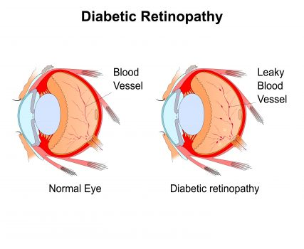 Diabetic Retinopathy Causes Symptoms Prevention And Cure