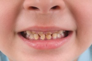 Top 6 Most Common Dental Diseases Affecting Patients