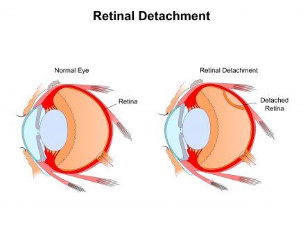 Retinal Detachment Causes Symptoms Types And Treatments