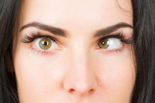 Strabismus Its Causes And Post-Op Risks And Complications