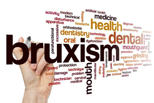 Bruxism Causes Symptoms Types Prevention And Treatment