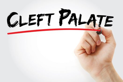 Cleft Lip And Cleft Palate Are Rare But They Deserve Attention