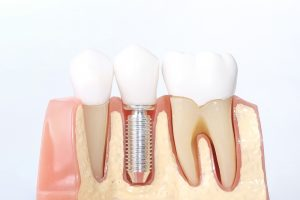 Dental Implants Procedure Advantages Disadvantages And Risks