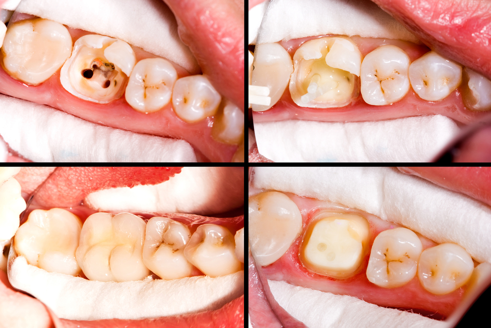 Composite Fillings and how your decayed teeth can look natural