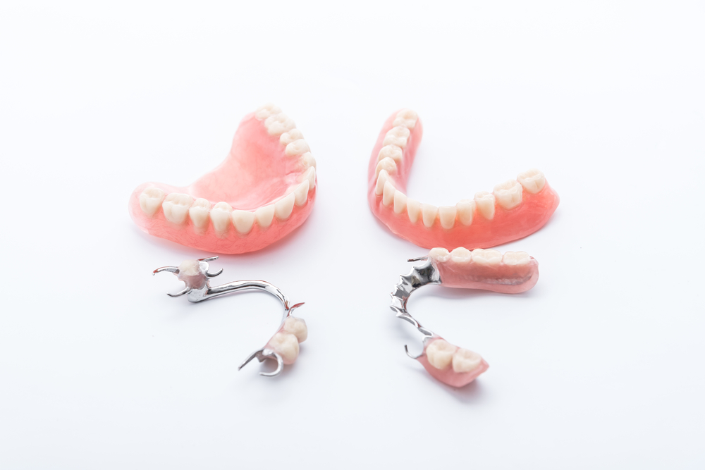 Dentures Steps Involved Advantages And Disadvantages