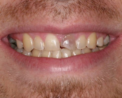 Before - Cosmetic Dentistry Portfolio
