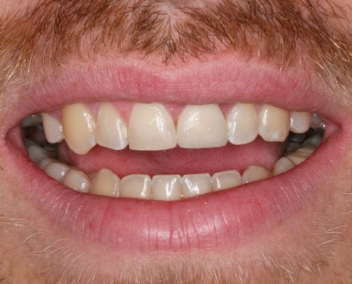 After - Cosmetic Dentistry Portfolio