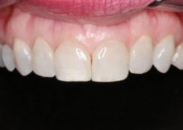 Conservative Cosmetic Dental Bonding - Before Picture