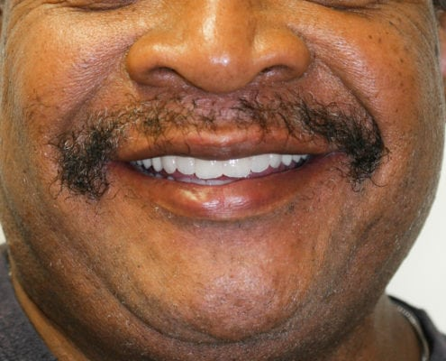 Same Day Whole Mouth Restoration