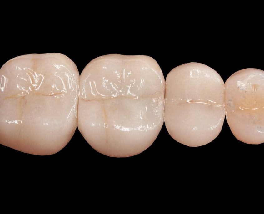 Ceramic Crowns After Picture