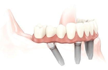 Slidell Dentist
