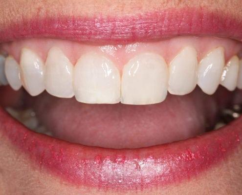 Conservative Dental Bonding - After Picture