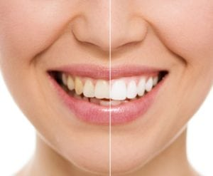 CCFD Slidell Cosmetic Dentist