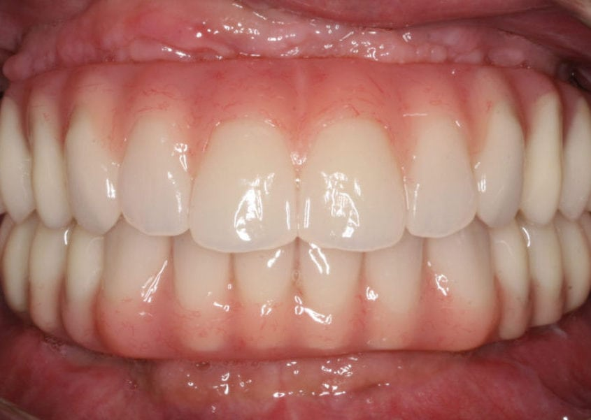 Same Day Whole Mouth Restoration After
