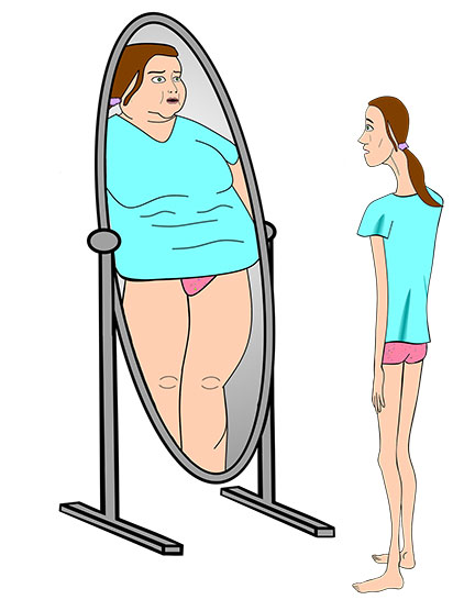 common eating disorders
