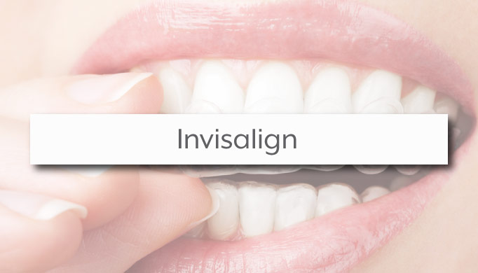 Invisalign Provider South Charlotte Dental Office M. Katy Moore DMD