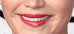 JL mouth