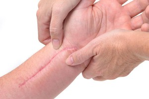Injury can leave scars that are often more than skin deep.