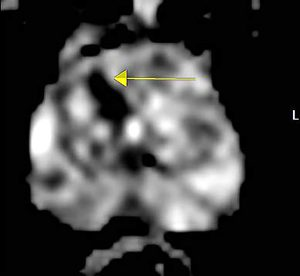 Functional MRI image demonstrating abnormality (arrow)