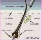Are there different kinds of Electrolysis?