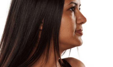 Laser or electrolysis for darker skins