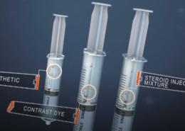 Chandler Arizona Epidural Steroid Injections