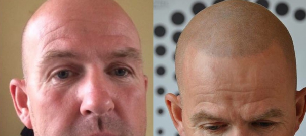 fixing scars from hair transplants