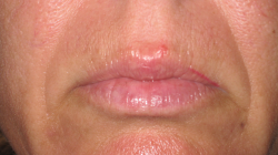 Before Picture (lips)